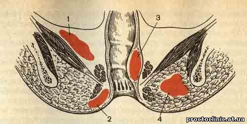v-analnaya-masturbatsiya