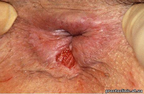 задняя анальная трещина